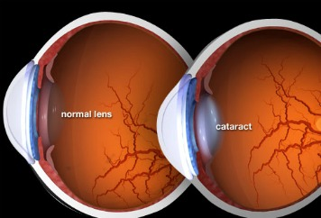 Cataracts- Causes, Symptoms, and Treatment of Cataracts —Health ...